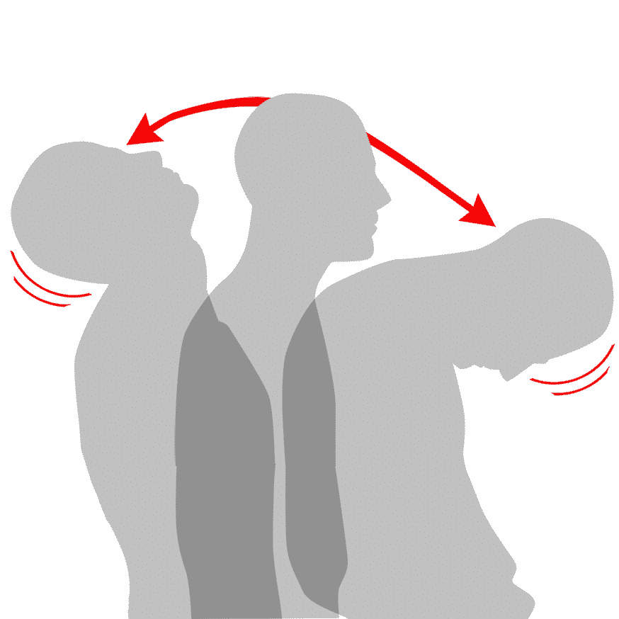 Whiplash - Illustration   REHABgrossisten