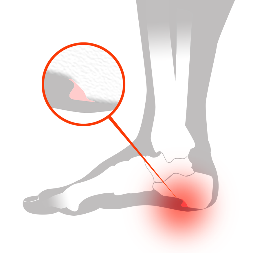 Hälsporre, Plantar Fasciit - Illustration | REHABgrossisten