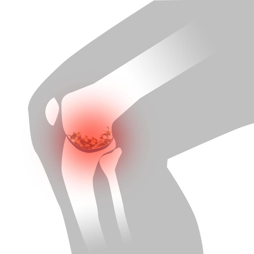 Artros i knäleden - Illustration | REHABgrossisten