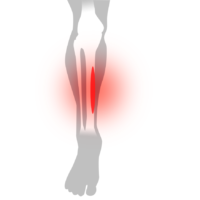 Benhinneinflammation - Illustration   REHABgrossisten