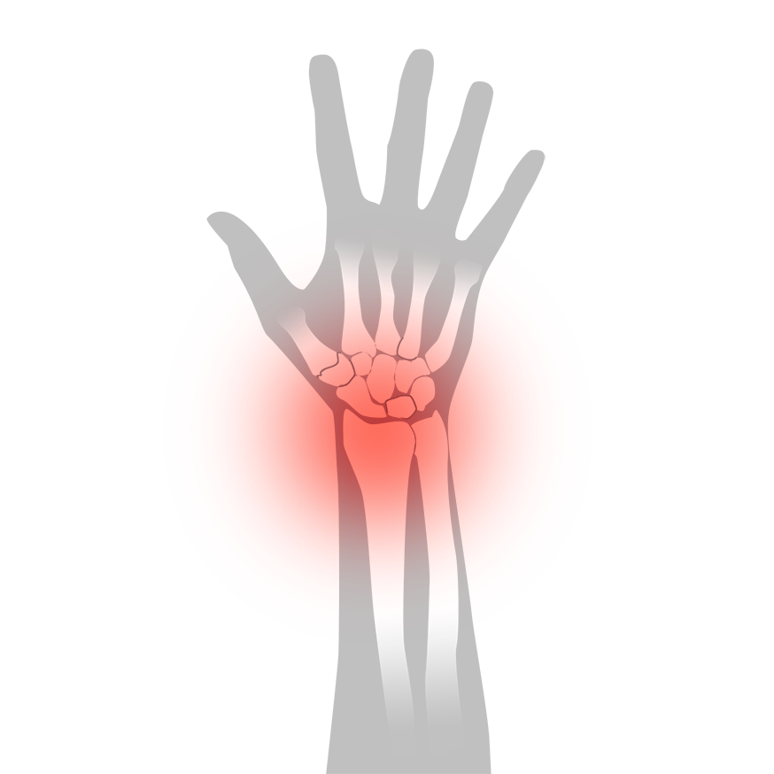 Inflammation i handleden - Illustration | Rehabgrossisten