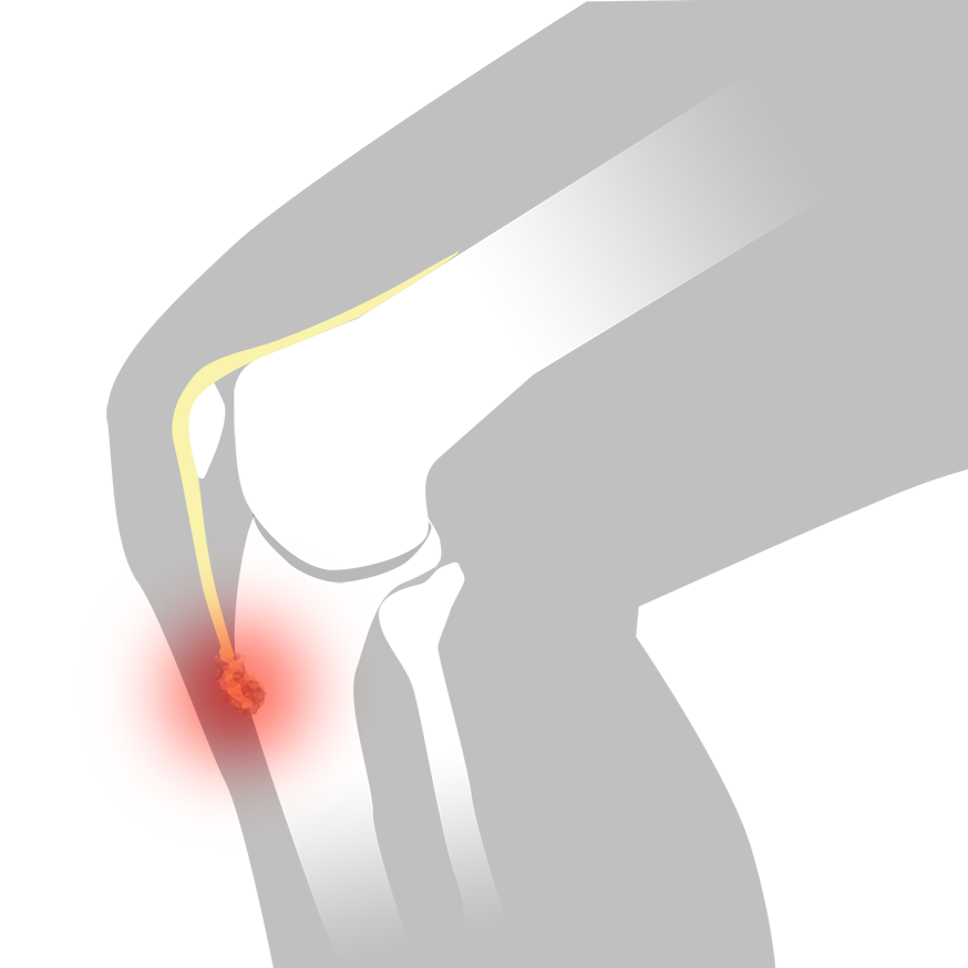 Schlatter - Illustration | REHABgrossisten