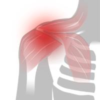 Smärta i axeln - Illustration | REHABgrossisten