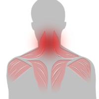 Smärta i nacken - Illustration | REHABgrossisten