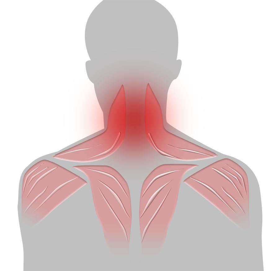 artros i nacke