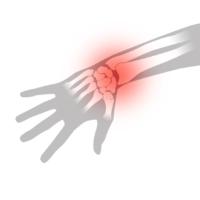 Stukad handled - Illustration | REHABgrossisten