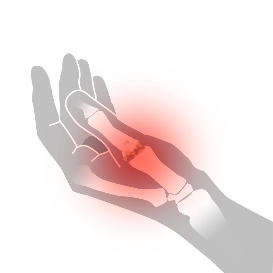 Artros i tummen - Illustration | REHABgrossisten