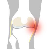 Smärta insida knä - Illustration   REHABgrossisten
