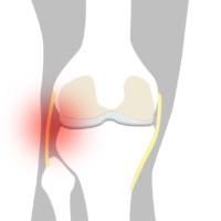 Smärta utsida knä - Illustration   REHABgrossisten
